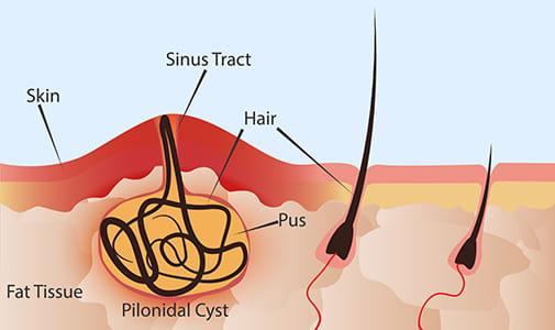 Pilonidal cyst illustration